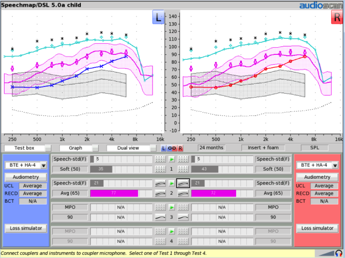 Clinical Verification Of Ear Level Fm Systems Classroom