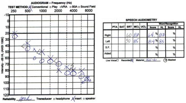 Hearing aids for bilateral sensorineural hearing loss reviews