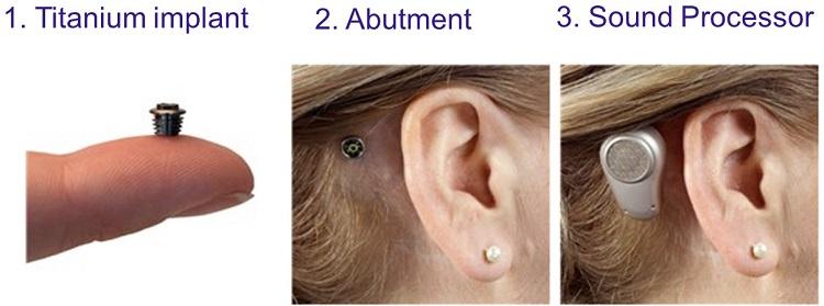 Microtia Ear Surgery and Bone Anchored Hearing Devices Sheryl ...